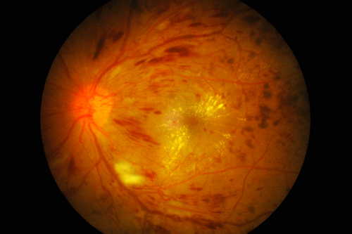 New Diabetic Macular Edema Therapy To Be Tested In First Human Trials