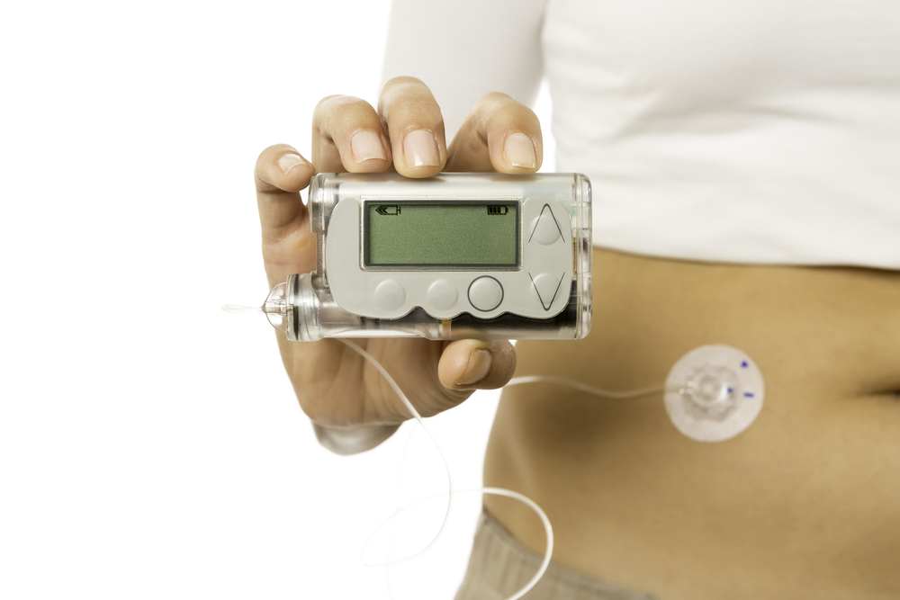 FDA Recommends Glucose Monitors and Insulin Pumps for Diabetes Management