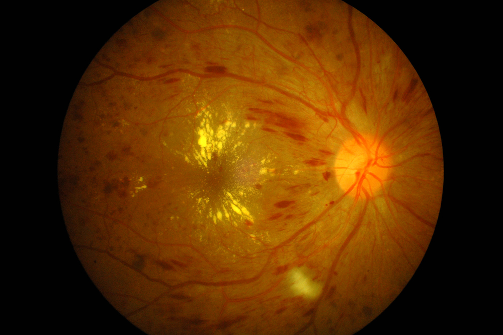 "New Diabetic Retinopathy Treatment Gets FDA ""Breakthrough Therapy"" Approval"