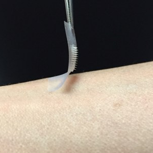The smart insulin patch could be placed anywhere on the body to detect increases in blood sugar and then secrete doses of insulin when needed. (Photo Courtesy of Zhen Gu, PhD)
