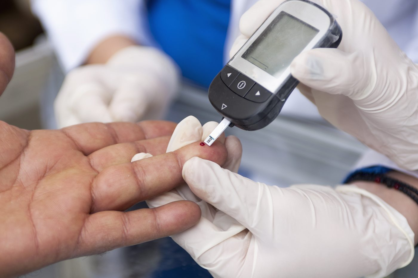 Study Finds That Sleeve Gastrectomy Patients May Develop Diabetes in the Long-Term