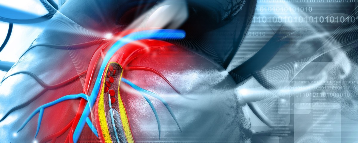 Diabetic Vascular Disease Linked to High Levels of a Blood Vessel Protein